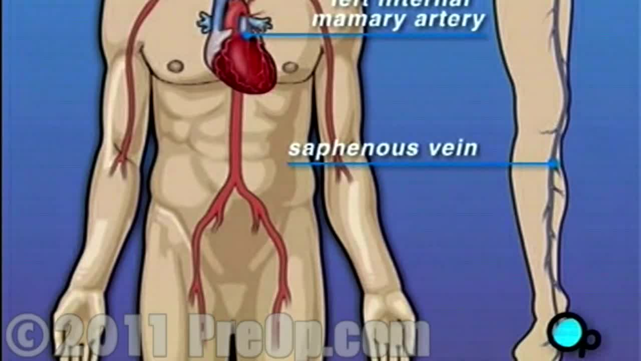 Heart -Coronary Artery Bypass Graft (CABG off-pump) PreOp® Patient Education HD