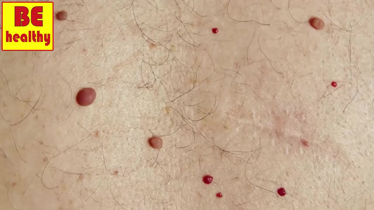 What DoThese Red Dots onYour Skin Mean