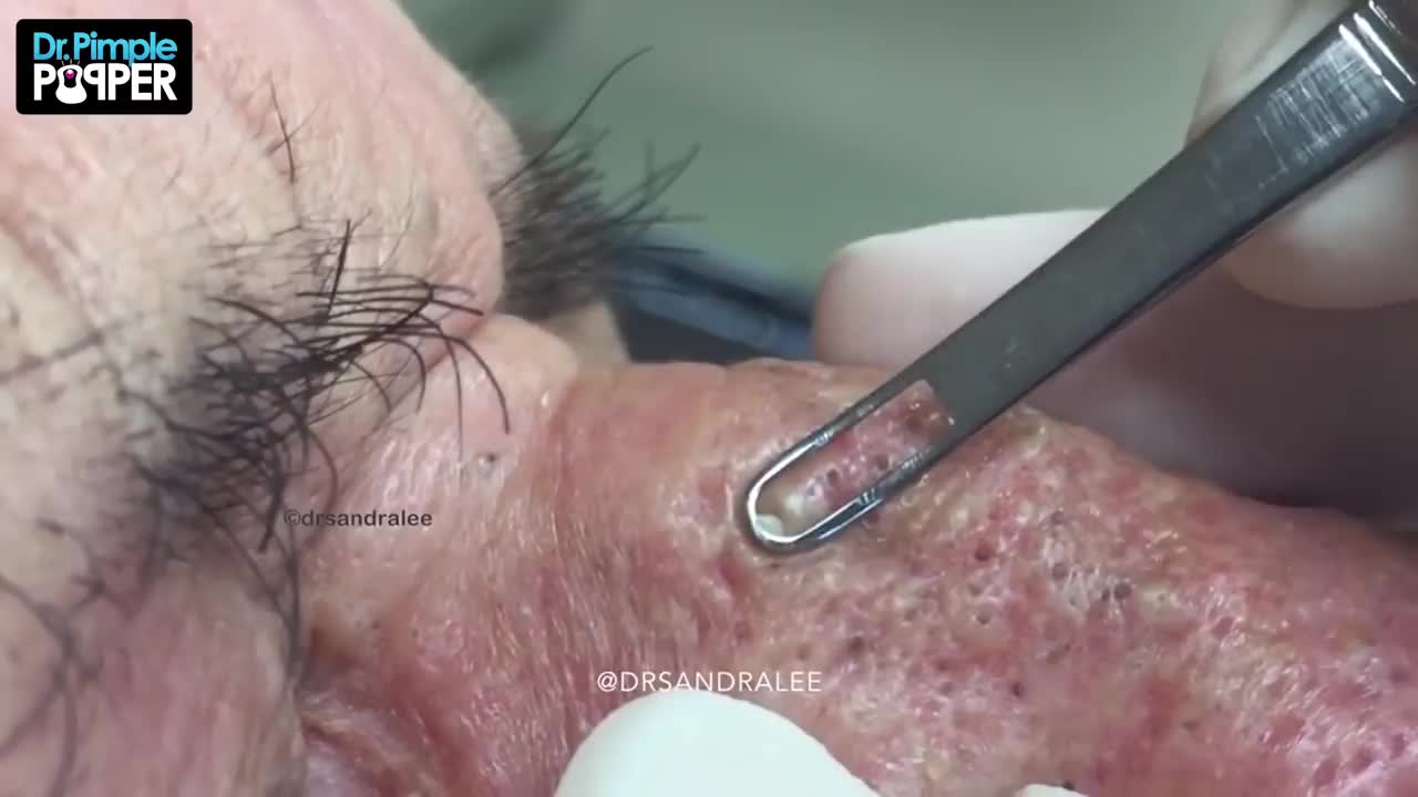 Mr Wilson S Blackhead Extractions Throwback