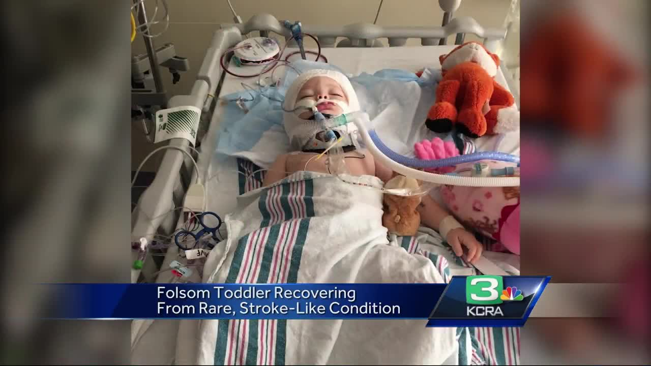 Story's Tale: Toddler survives rare brain condition, surgery