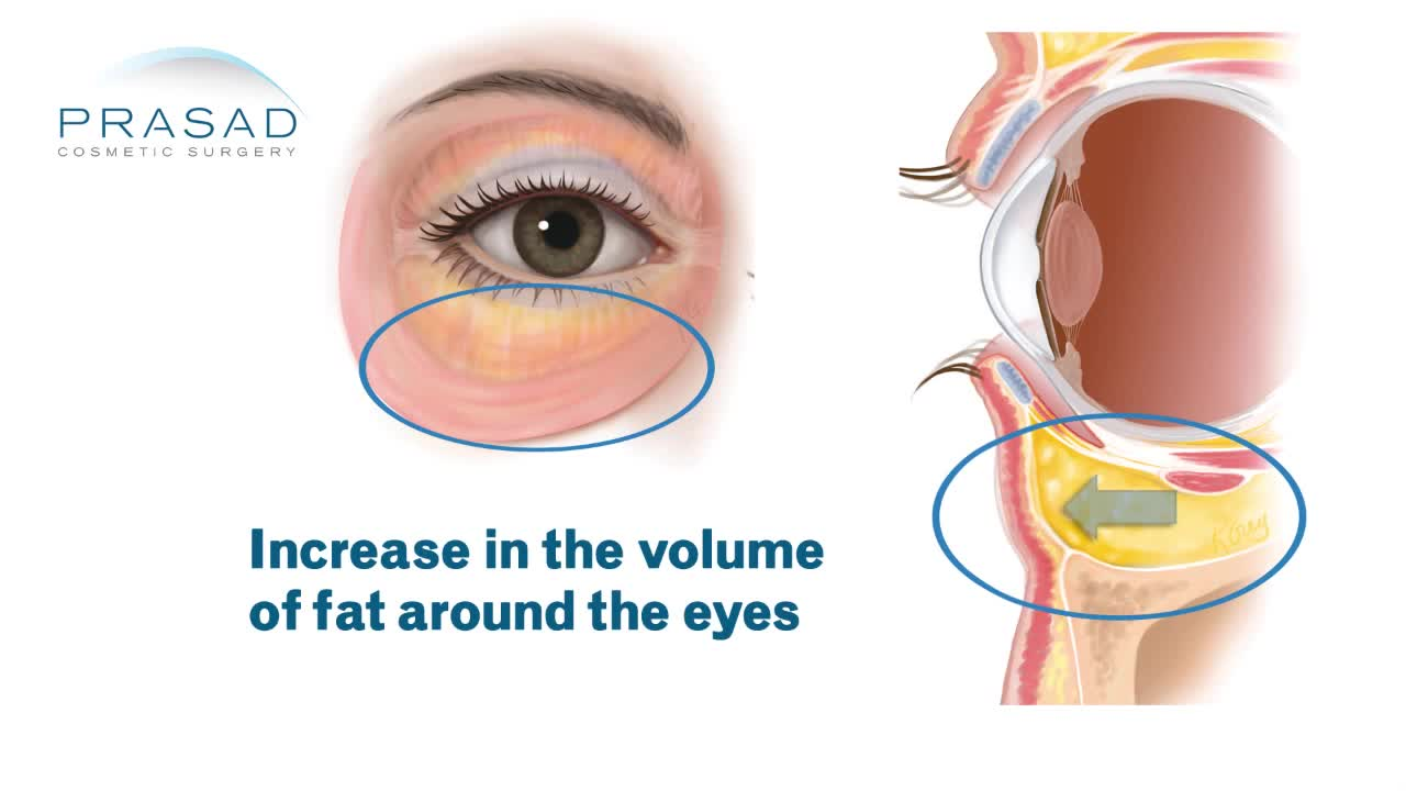 How Fluid Causes Temporary Puffy Eyes, and Why Constant Eye Bags are Caused by Fat