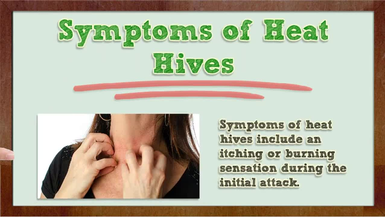 how to get rid of heat hives antihitsamines