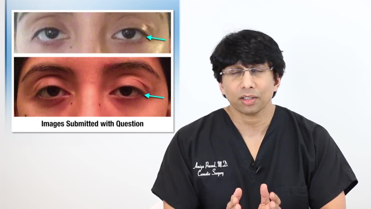 How Eyelid Ptosis (Drooping Eyelid) Can Happen After Thyroid Eye