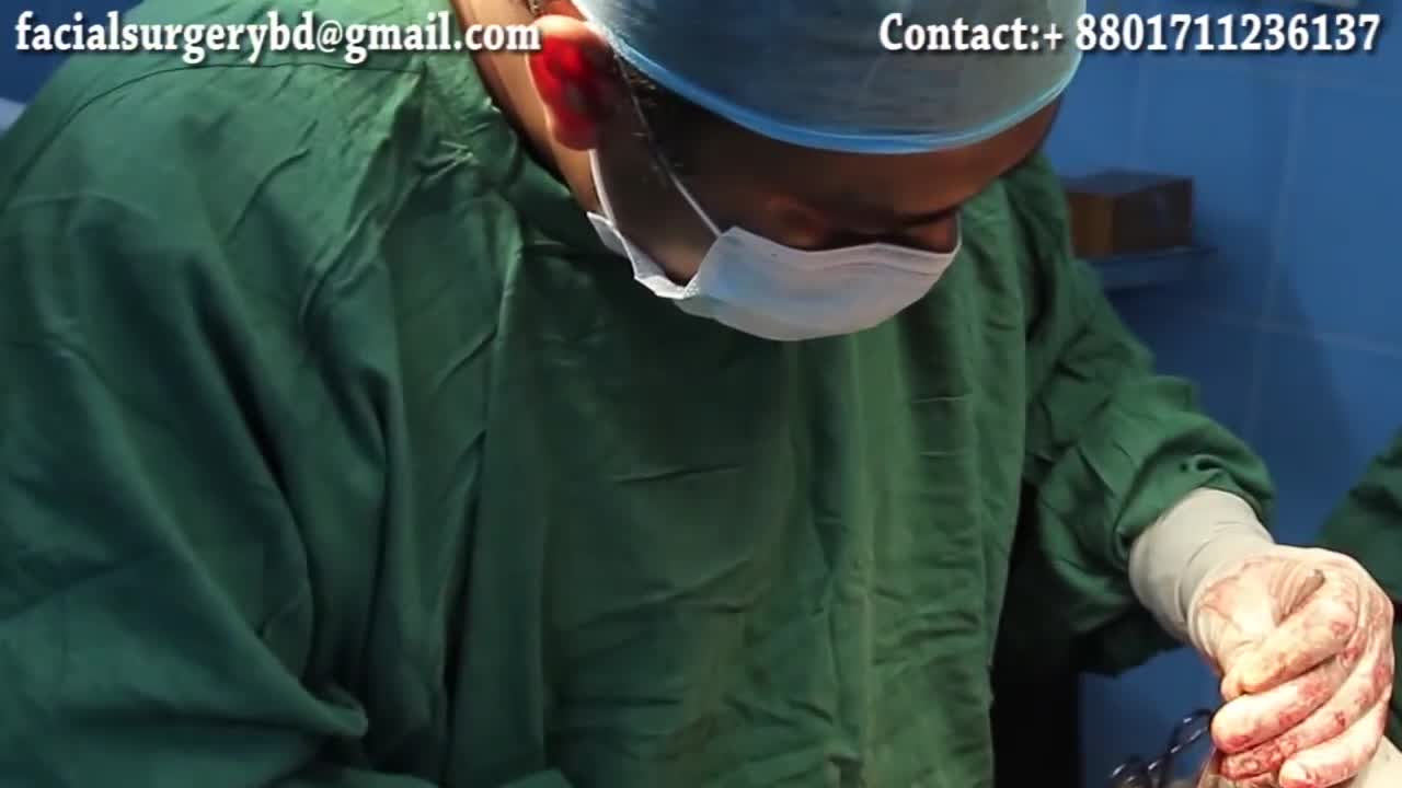 Ameloblastoma (Oral Tumor) Surgery & Microvascular Reconstruction by Dr Abdullah Masud -English Sub