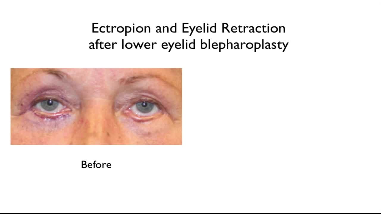 Why Eye Bag Removal in Prominent Eyes is Best Done by Specialist, and the Right Time for Revision